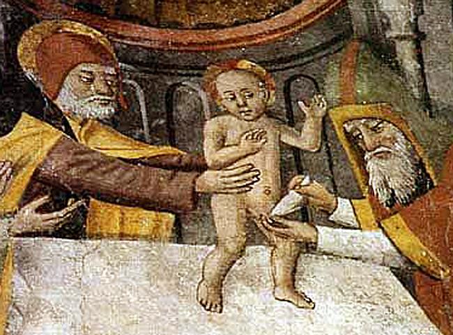 circoncision