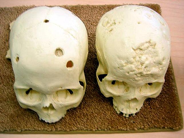 syphilis attaque les os